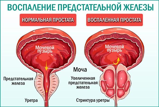 Обостренный простатита секрет простатиты